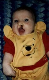 This was taken before my lip repair surgery on my first Halloween, Oct. 31, 1996.